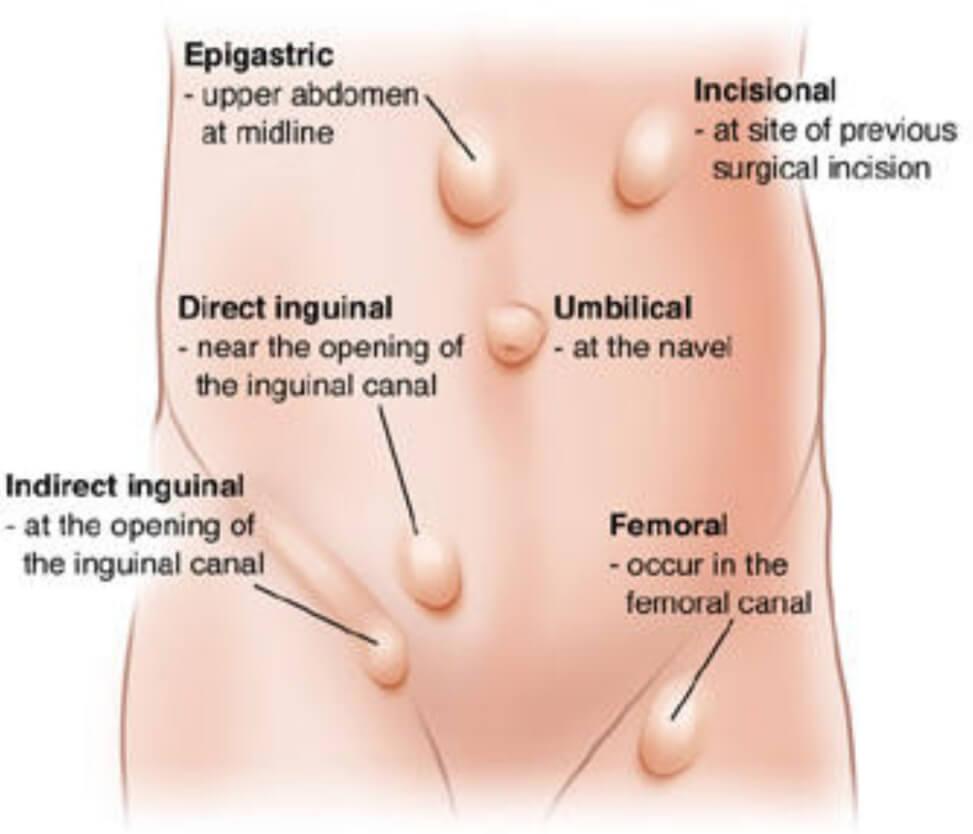 hernia repair surgery