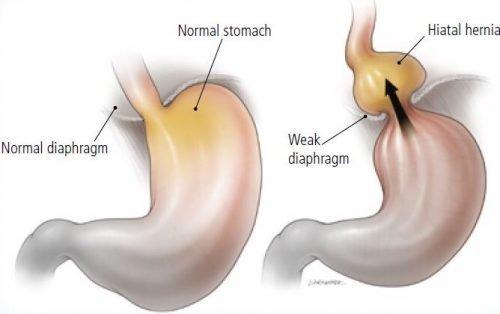 hiatus hernia surgery perth