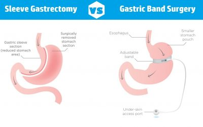 Deciding between Gastric Sleeve or Lap Band Surgery? Read this first.