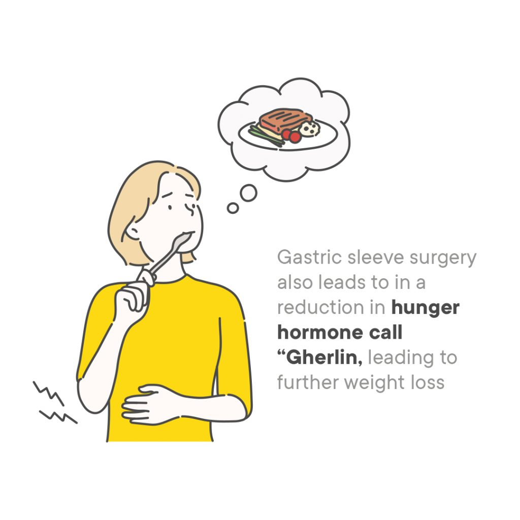 gastric sleeve surgery perth